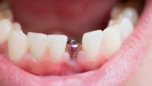 Implantate: Wie kann die Zahnzusatzversicherung finanziell unterstützen?