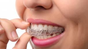 Invisalign® – die Alternative zur klassischen Zahnspange?