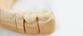 Implantate Zähne
