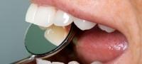 Zahnbehandlung Zahnbehandlungen