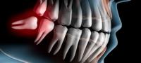 Was tun bei akuten Zahnproblemen?