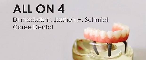 All On 4 – schneller und einfacher zum festen Zahnersatz