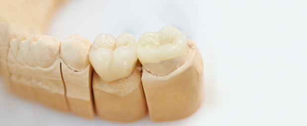 Implantate Zähne, Zahnimplantate
