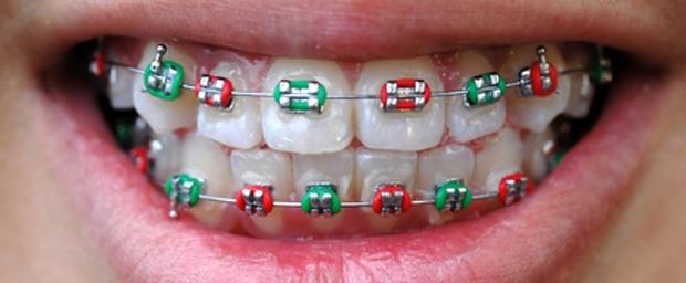 Kieferfehlstellungen, Zahnfehlstellungen, Fehlstellung der Zähne