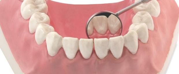 Zahnfleischentzündung, Gingivitis, Entzündung am Zahnfleisch