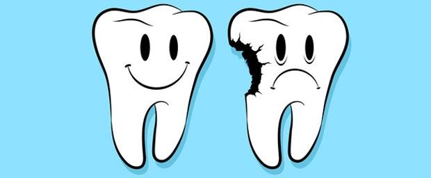 Zahnschmerzen (Odontalgie, Dentalgie)