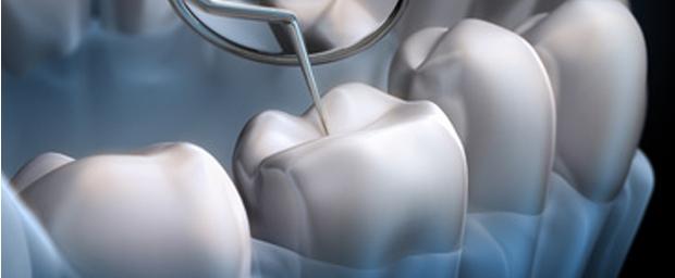 Neuer Zahn-Patch gegen Karies