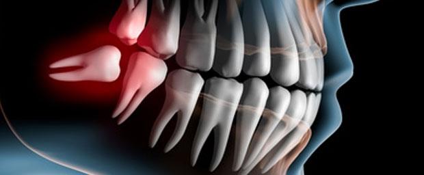 Plötzliche Zahnschmerzen: Was bis zum Zahnarzttermin hilft