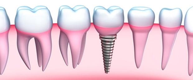 Zahnersatz: Alternativen und Möglichkeiten